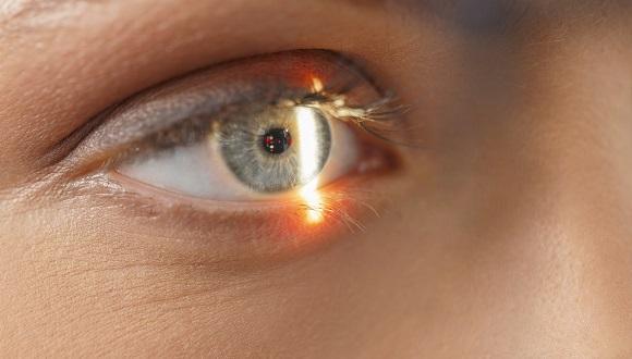 החוג לרפואת עיניים אופתלמולוגיה